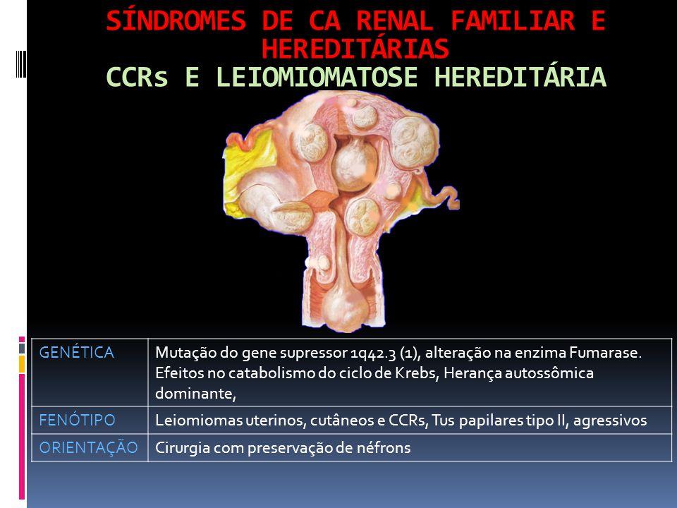 SÍNDROMES DE CA RENAL FAMILIAR E HEREDITÁRIAS CCRs E LEIOMIOMATOSE HEREDITÁRIA GENÉTICAMutação do gene supressor 1q42.3 (1), alteração na enzima Fumarase.
