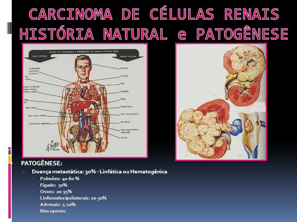 PATOGÊNESE: PATOGÊNESE: Doença metastática: 30% - Linfática ou Hematogênica Doença metastática: 30% - Linfática ou Hematogênica Pulmões: 40-60 % Pulmões: 40-60 % Fígado: 30% Fígado: 30% Ossos: 20-35% Ossos: 20-35% Linfonodos Ipsilaterais: 20-30% Linfonodos Ipsilaterais: 20-30% Adrenais: 5-10% Adrenais: 5-10% Rim oposto: Rim oposto: