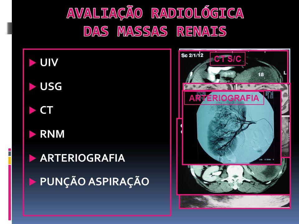TXTumor primário não avaliado T0Sem evidência de Tu primário T1Tu < 7 cm confinado à cápsula renal T1aTumor 4 cm T1bTumor entre 4 e 7 cm T2Tumor 7 cm confinado à cápsula renal T3a Extensão aos tecidos perirrenais ou adrenal ipsilateral, porém limitado à fáscia de Gerota T3b Invasão da veia renal ou cava inferior infradiafragmática T3CInvasão da veia cava inferior supradiafragmática T4 Extensão além da Fáscia de Gerota (exceto adrenal) NXLinfonodos não podem ser avaliados N0Sem metástases em linfonodos regionais N1Metástase em 1 linfonodo regional isolado N2Metástase em mais de 1 linfonodo regional MXMetástases à distância não pode ser avaliada M0Sem metástases à distância M1Metástase à distância CT RNM USG DOPPLER ARTERIOGRAFIA CINTILOGRAFIA ÓSSEA Dor óssea FA ou Ca elevados T3b Invasão de gordura peri-renal Invasão vascular Acometimento de linfonodos