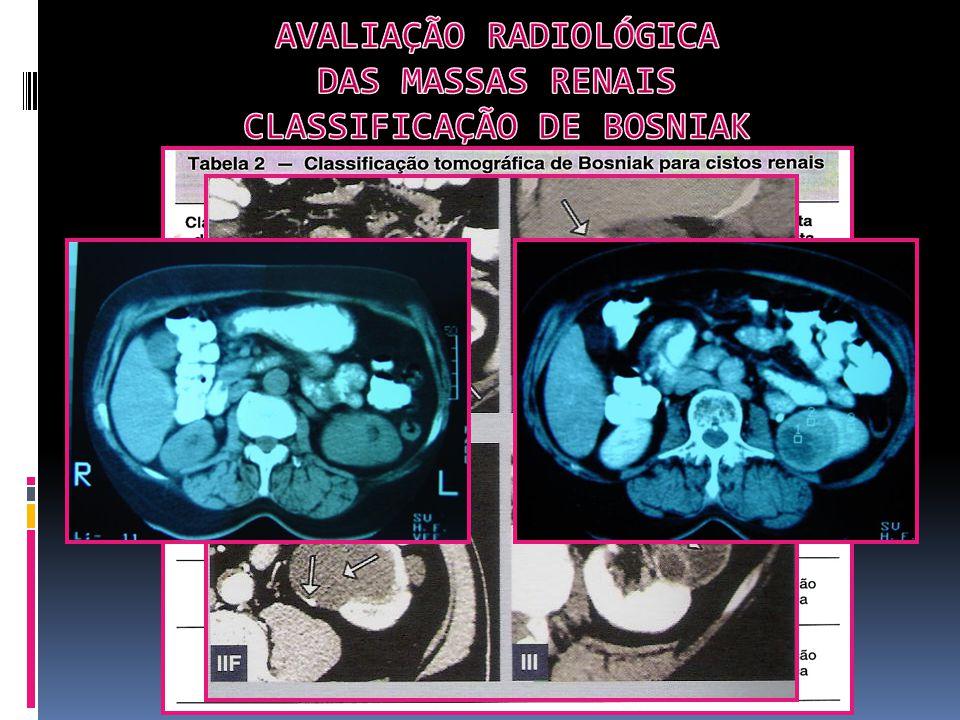 Alterações laboratoriais: VHS Hipercalcemia Hemoglobina Eritrocitose Trombocitose Fosfatase Alcalina Gelb AB.