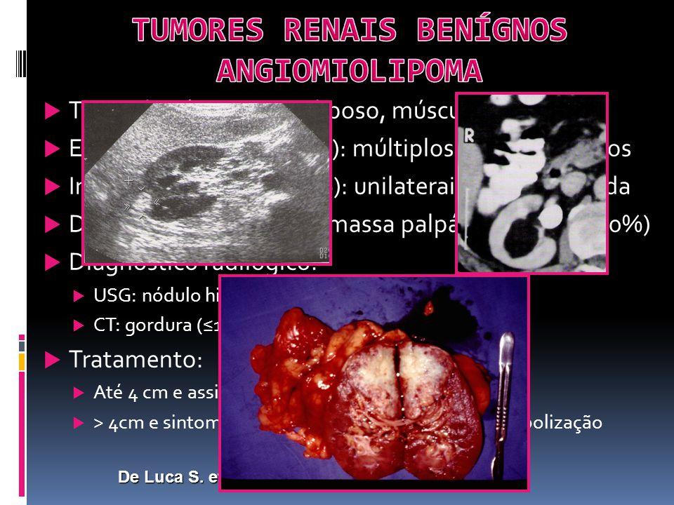SÍNDROMES DE CA RENAL FAMILIAR E HEREDITÁRIAS CARCINOMA RENAL PAPILAR HEREDITÁRIO GENÉTICAMutação do oncogene c-Met (7), atividade aberrante da tirosinakinase IC, ativação de fats.