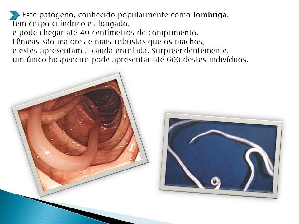 Este patógeno, conhecido popularmente como lombriga, tem corpo cilíndrico e alongado, e pode chegar até 40 centímetros de comprimento.