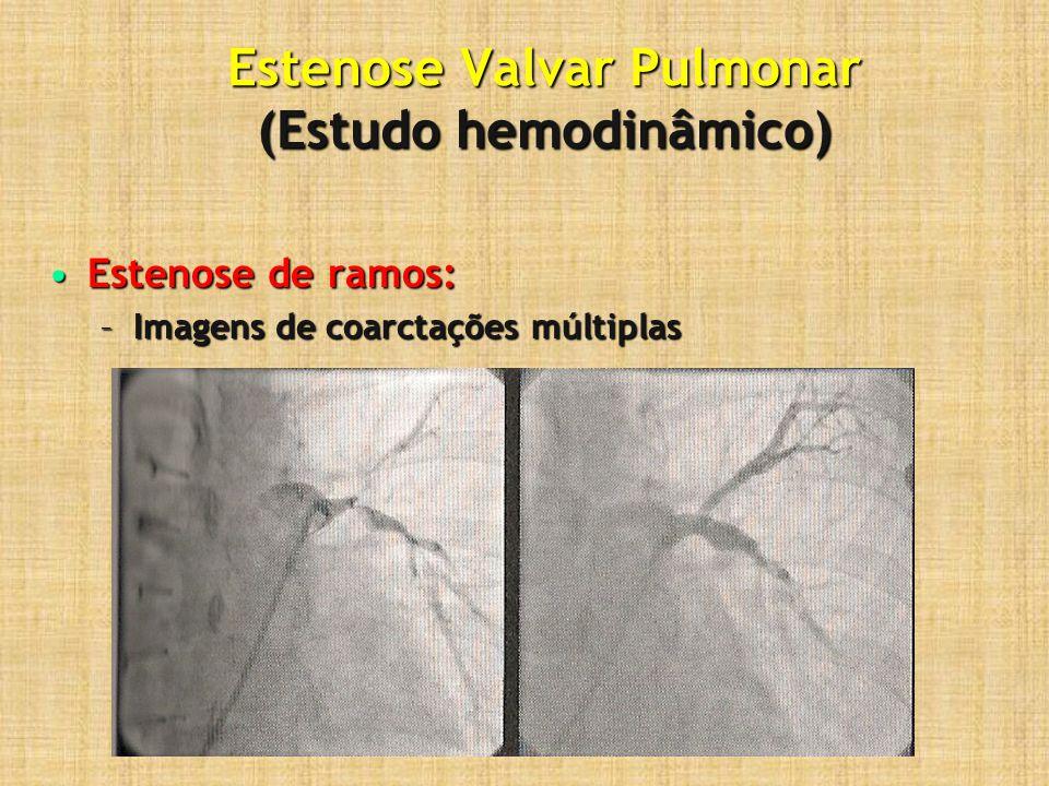 Estenose Valvar Pulmonar (Estudo hemodinâmico) Estenose de ramos:Estenose de ramos: –Imagens de coarctações múltiplas