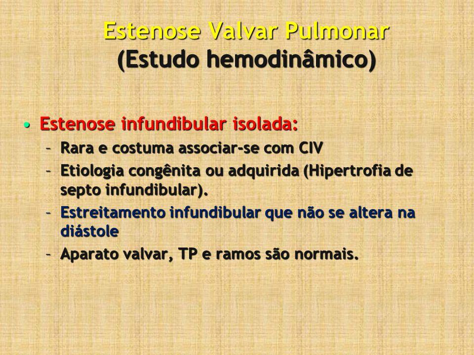 Estenose Valvar Pulmonar (Estudo hemodinâmico) Estenose infundibular isolada:Estenose infundibular isolada: –Rara e costuma associar-se com CIV –Etiol