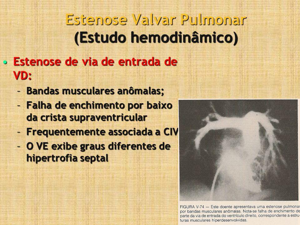 Estenose Valvar Pulmonar (Estudo hemodinâmico) Estenose de via de entrada de VD:Estenose de via de entrada de VD: –Bandas musculares anômalas; –Falha