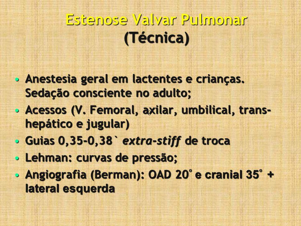 Estenose Valvar Pulmonar (Técnica) Anestesia geral em lactentes e crianças. Sedação consciente no adulto;Anestesia geral em lactentes e crianças. Seda