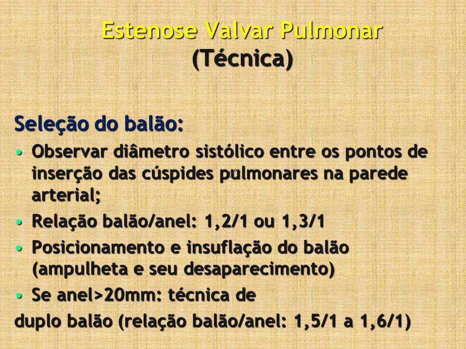 Estenose Valvar Pulmonar (Técnica) Seleção do balão: Observar diâmetro sistólico entre os pontos de inserção das cúspides pulmonares na parede arteria