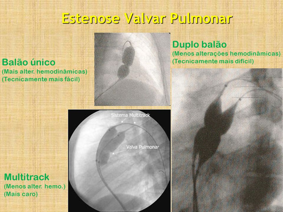 Estenose Valvar Pulmonar Multitrack (Menos alter. hemo.) (Mais caro) Duplo balão (Menos alterações hemodinâmicas) (Tecnicamente mais difícil) Balão ún