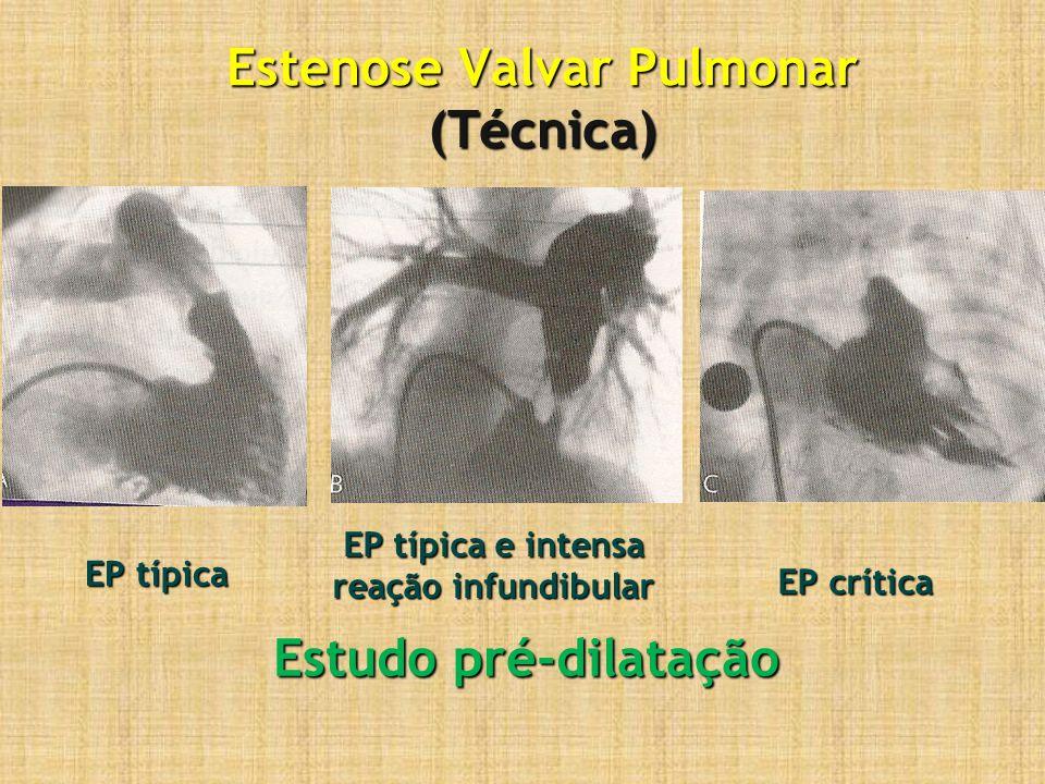 Estenose Valvar Pulmonar (Técnica) Estudo pré-dilatação EP típica EP típica e intensa reação infundibular EP crítica