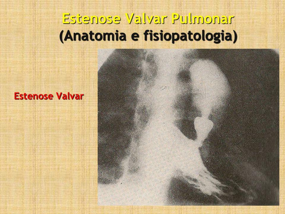 Estenose Valvar Pulmonar (Seguimento) Pós-operatório:Pós-operatório: –Eco-doppler: gradiente residual –Rx tórax: Excluir edema pulmonar, pneumotórax e derrames –ECG: pode persistir sobrecarga de VD 6meses:6meses: –Eco-doppler: gradiente residual final (desaparecimento de espasmo infundibular)
