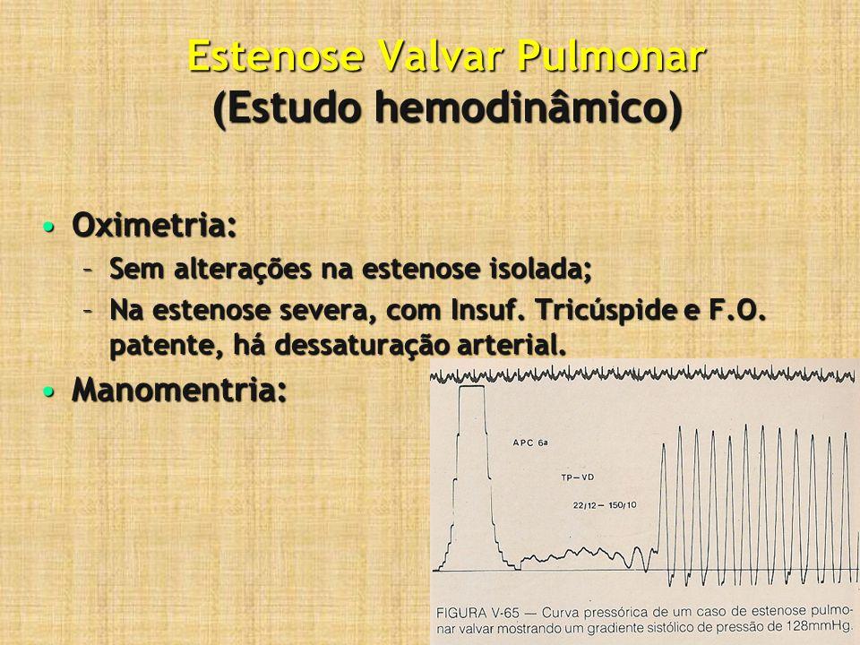 Estenose Valvar Pulmonar (Estudo hemodinâmico) Oximetria:Oximetria: –Sem alterações na estenose isolada; –Na estenose severa, com Insuf. Tricúspide e