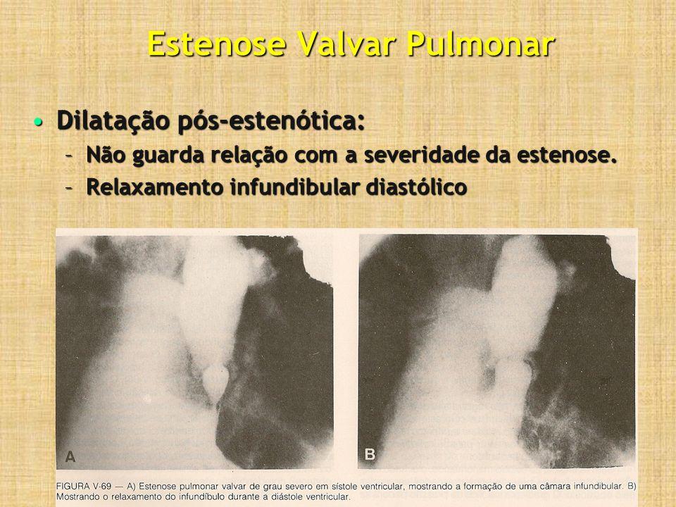 Estenose Valvar Pulmonar (Estudo hemodinâmico) Estenose valvar por hipoplasia valvar:Estenose valvar por hipoplasia valvar: –Cúspides espessadas, hipoplásicas, mas sem fusão comissural; –A visão angiográfica não é de cúpula.