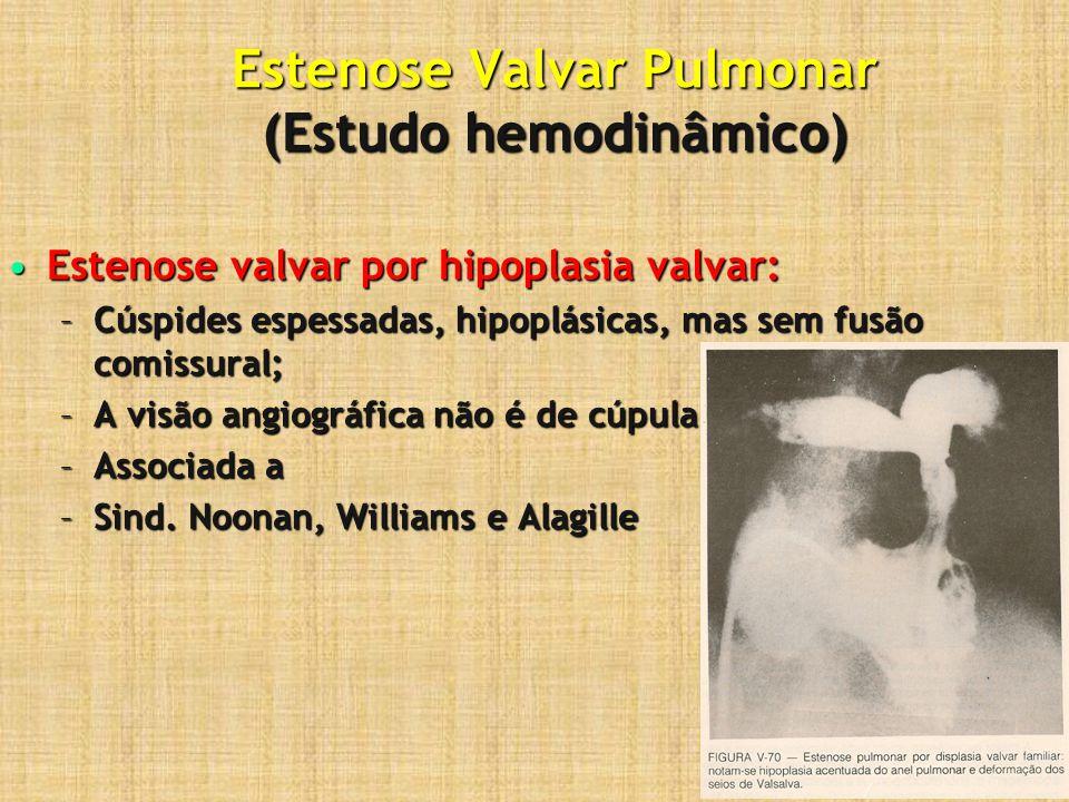 Estenose Valvar Pulmonar (Estudo hemodinâmico) Estenose valvar por hipoplasia valvar:Estenose valvar por hipoplasia valvar: –Cúspides espessadas, hipo