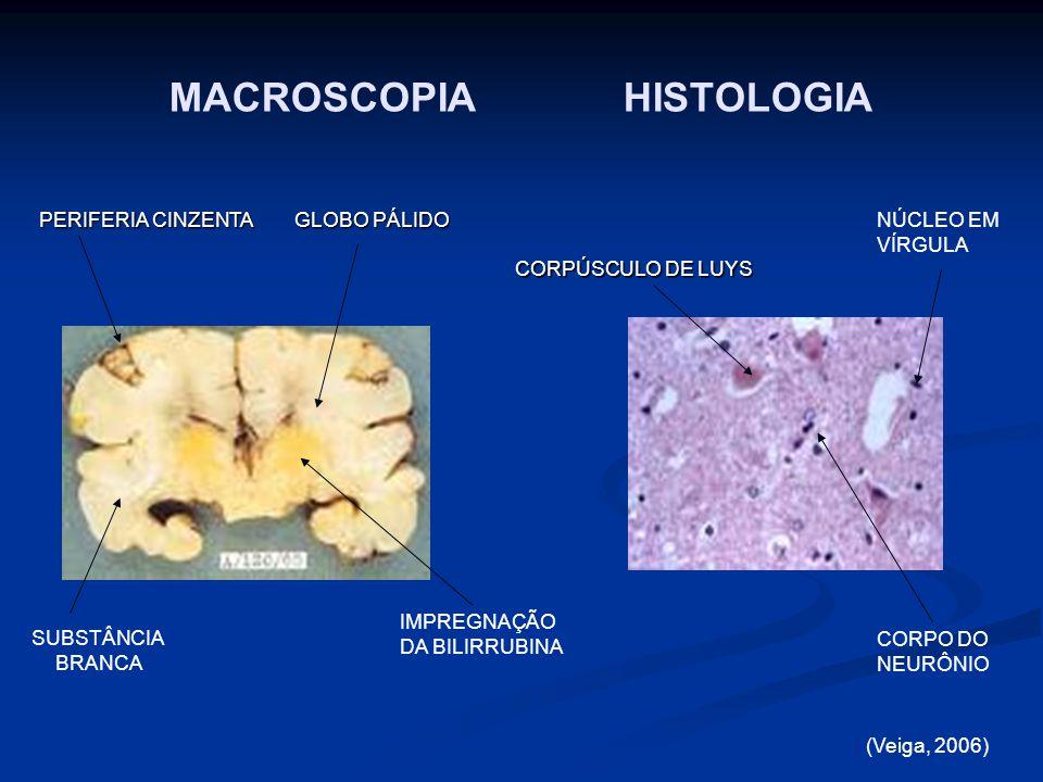 FISIOPATOLOGIA Mecanismo da lesão: A bilirrubina prejudica a homeostase do Ca ++ intracelular A bilirrubina prejudica a homeostase do Ca ++ intracelular O aumento do Ca ++ inicio da apoptose (morte celular programada) Glicoproteina P remove a bilirrubina da célula O aumento do Ca ++ inicio da apoptose (morte celular programada) Glicoproteina P remove a bilirrubina da célula (Shapiro et al., 2006)