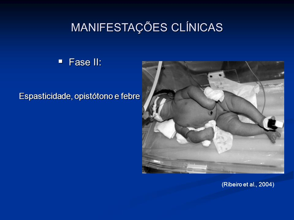 Fase III: Fase III: Aparente melhora no fim da primeira semana, com diminuição da espasticidade Aparente melhora no fim da primeira semana, com diminuição da espasticidade (Lemos, 2006) MANIFESTAÇÕES CLÍNICAS