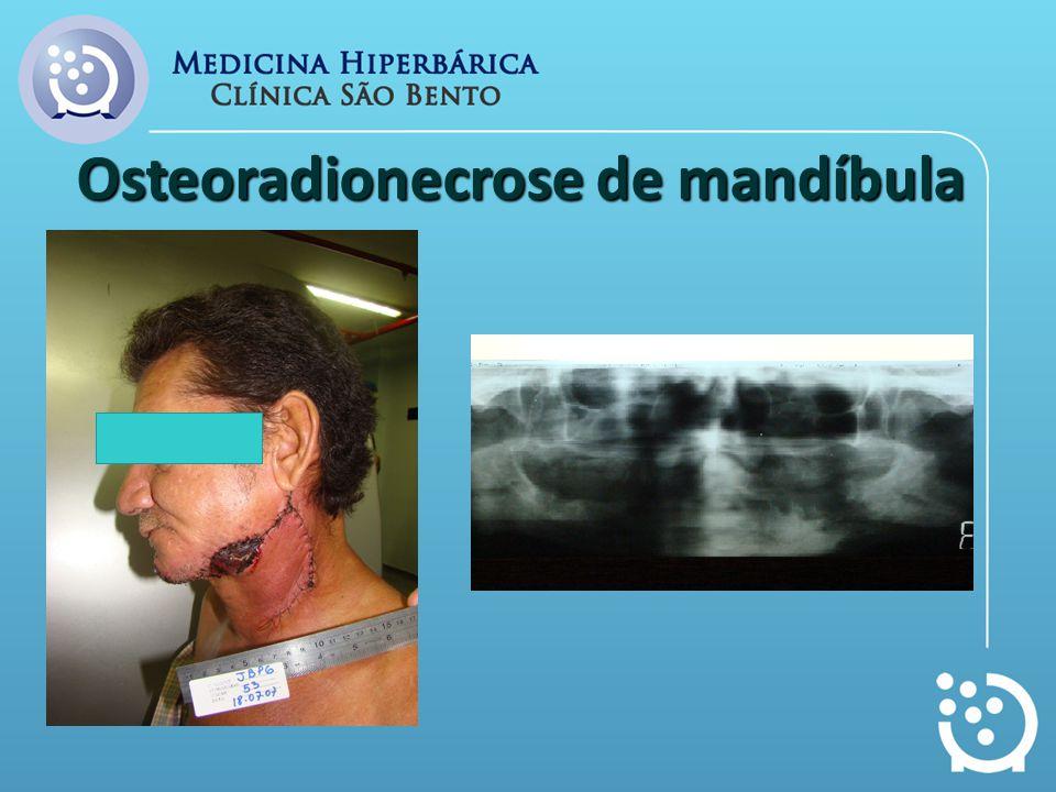 Osteoradionecrose de mandíbula