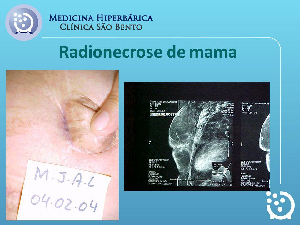 Radionecrose de mama