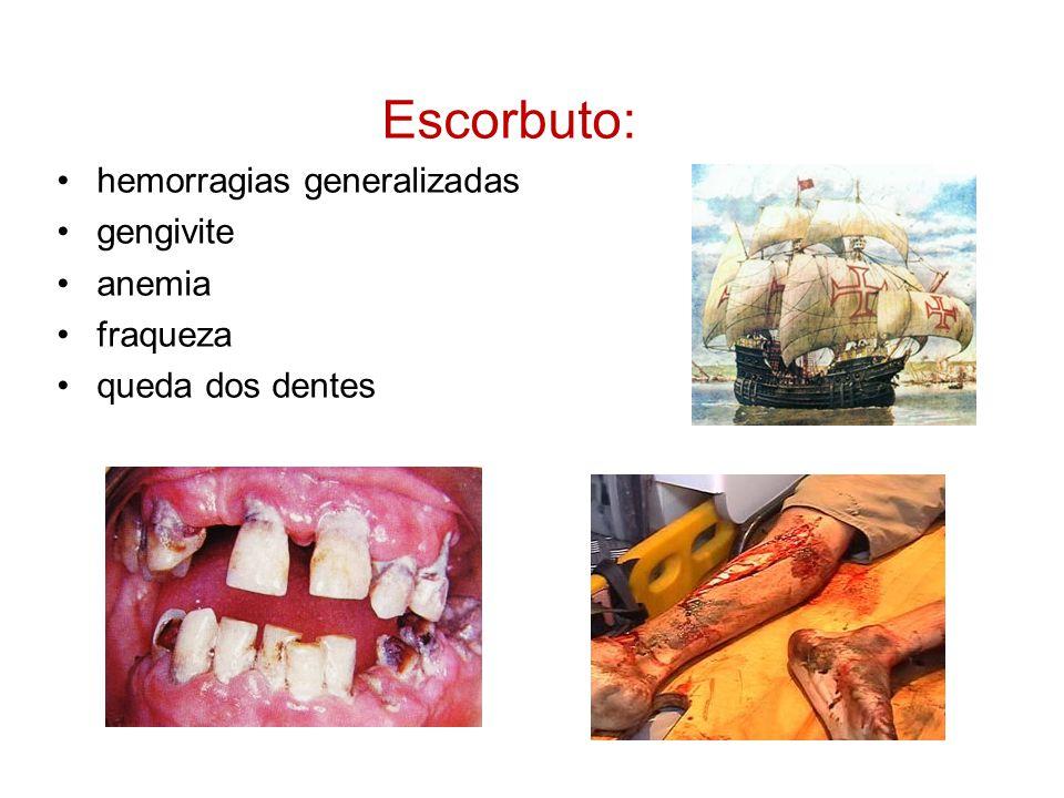 Escorbuto: hemorragias generalizadas gengivite anemia fraqueza queda dos dentes