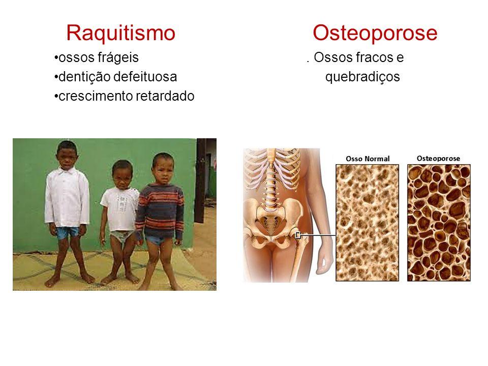 Raquitismo Osteoporose ossos frágeis.