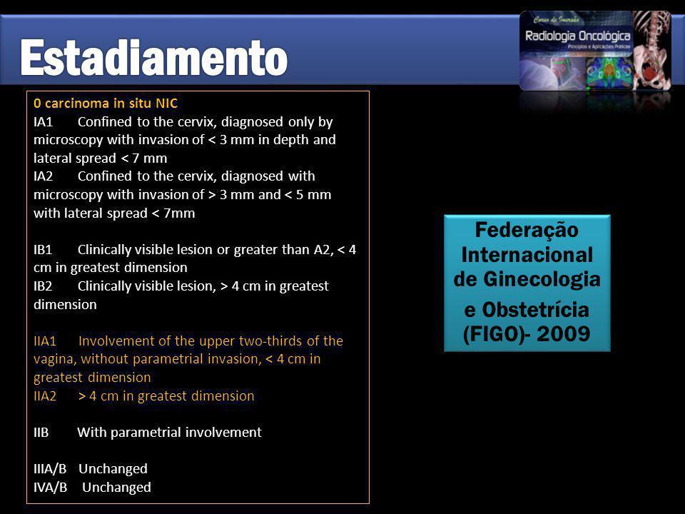 Federação Internacional de Ginecologia e Obstetrícia (FIGO)- 2009 Federação Internacional de Ginecologia e Obstetrícia (FIGO)- 2009 0 carcinoma in sit