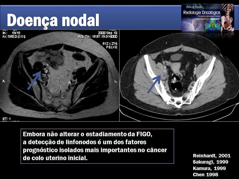 Embora não alterar o estadiamento da FIGO, a detecção de linfonodos é um dos fatores prognóstico isolados mais importantes no câncer de colo uterino i