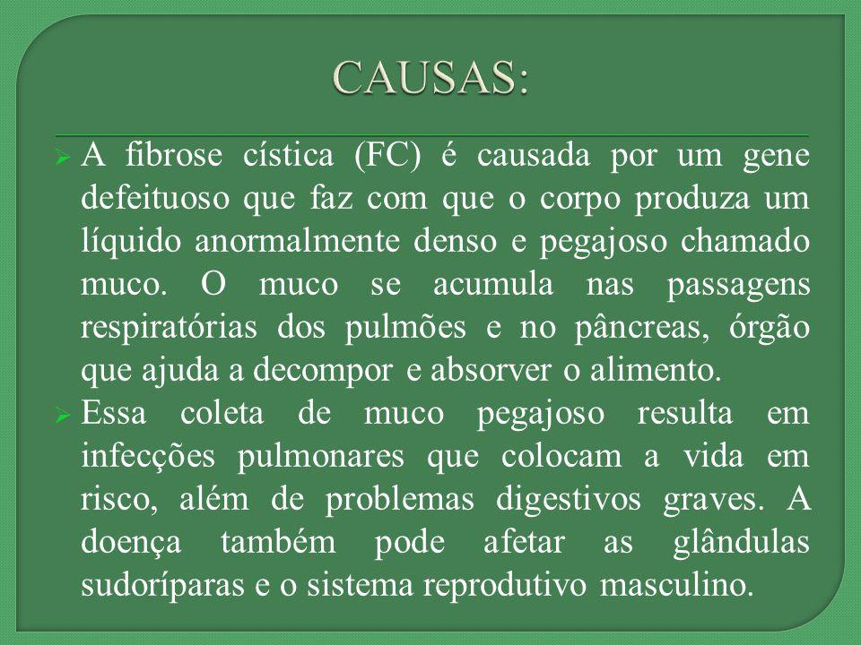 A fibrose cística (FC) é causada por um gene defeituoso que faz com que o corpo produza um líquido anormalmente denso e pegajoso chamado muco.