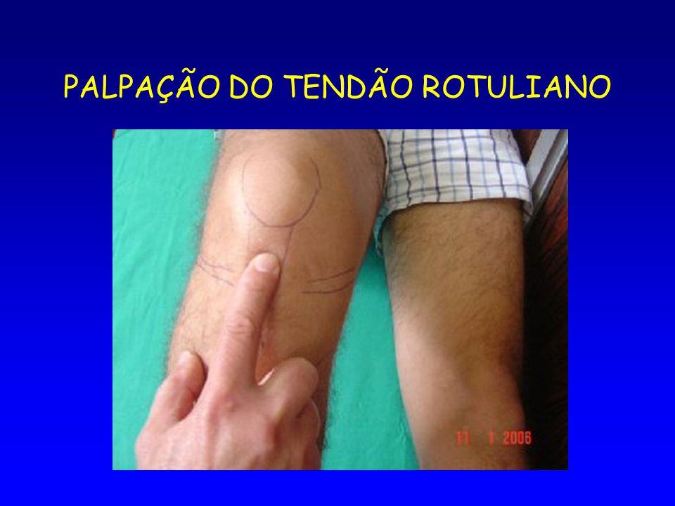 PALPAÇÃO DO TENDÃO ROTULIANO