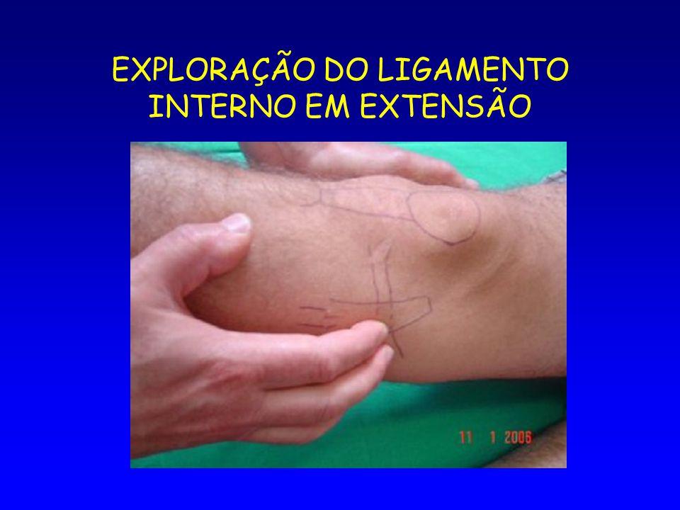 EXPLORAÇÃO DO LIGAMENTO INTERNO EM EXTENSÃO