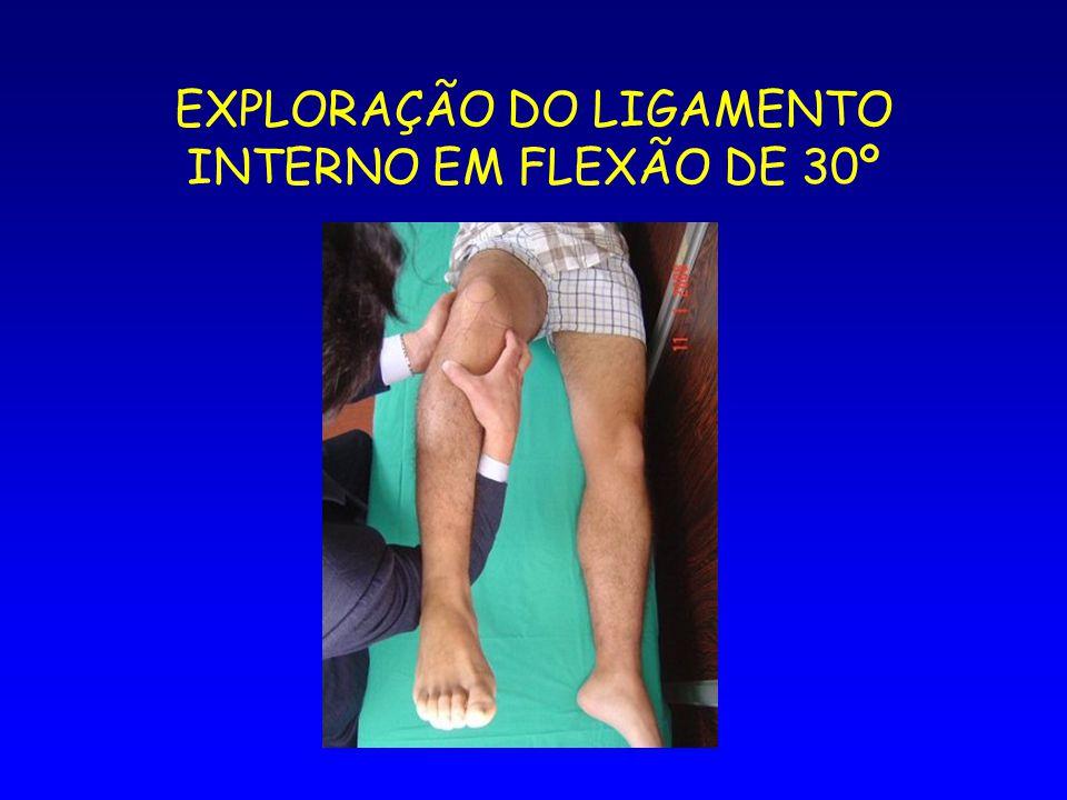 EXPLORAÇÃO DO LIGAMENTO INTERNO EM FLEXÃO DE 30º
