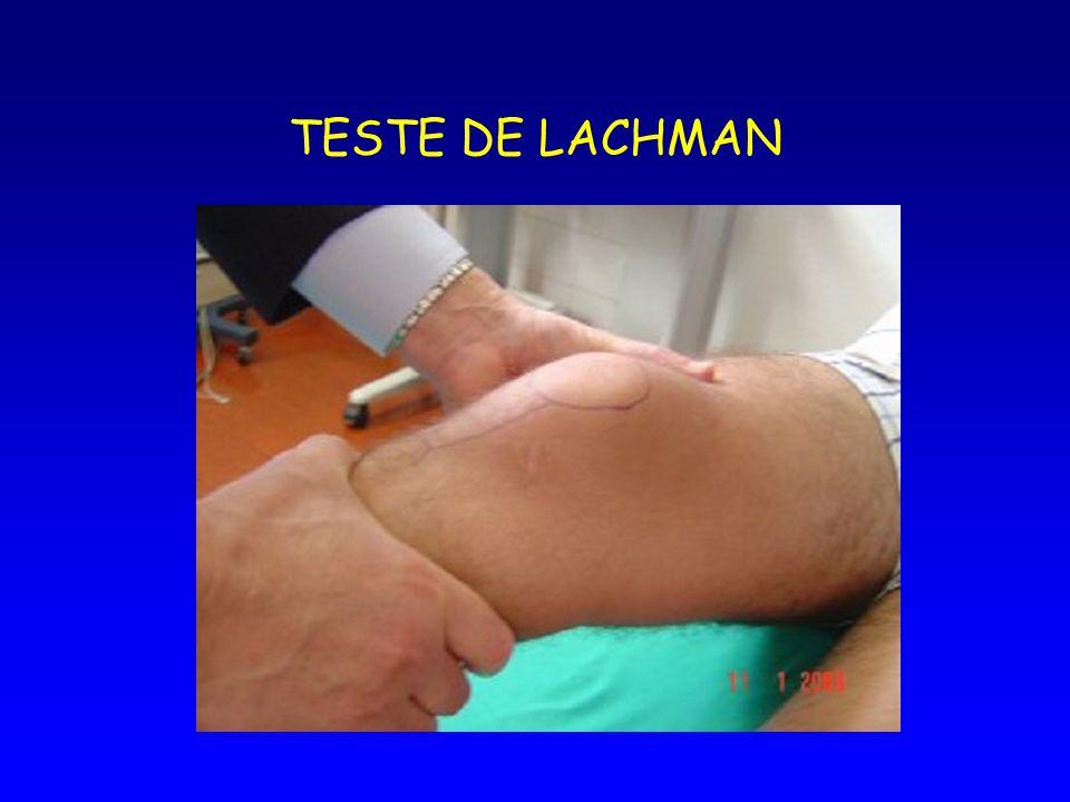 TESTE DE LACHMAN