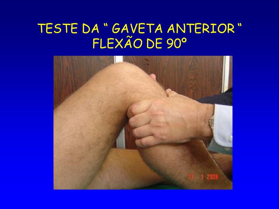 TESTE DA GAVETA ANTERIOR FLEXÃO DE 90º
