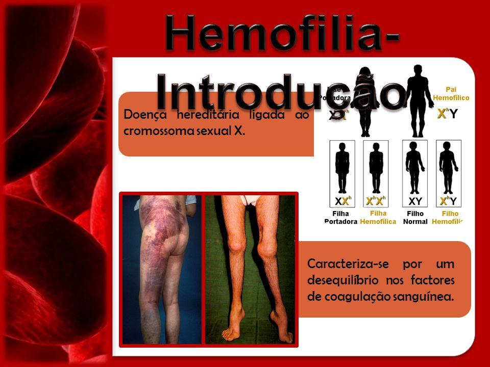 Doença hereditária ligada ao cromossoma sexual X. Caracteriza-se por um desequilíbrio nos factores de coagulação sanguínea.