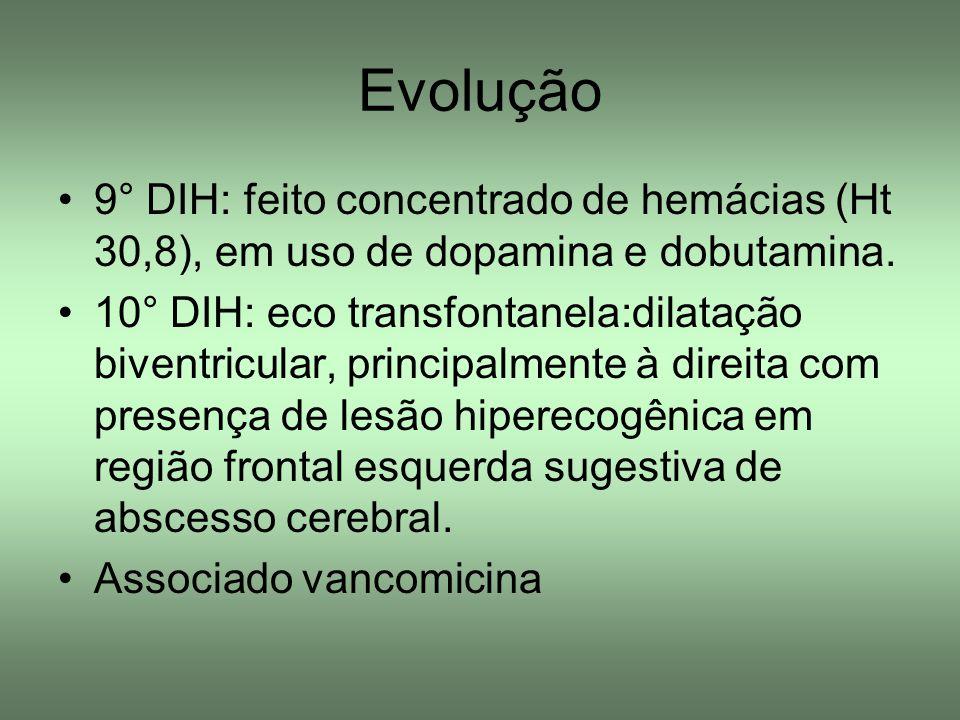 Evolução 9° DIH: feito concentrado de hemácias (Ht 30,8), em uso de dopamina e dobutamina. 10° DIH: eco transfontanela:dilatação biventricular, princi