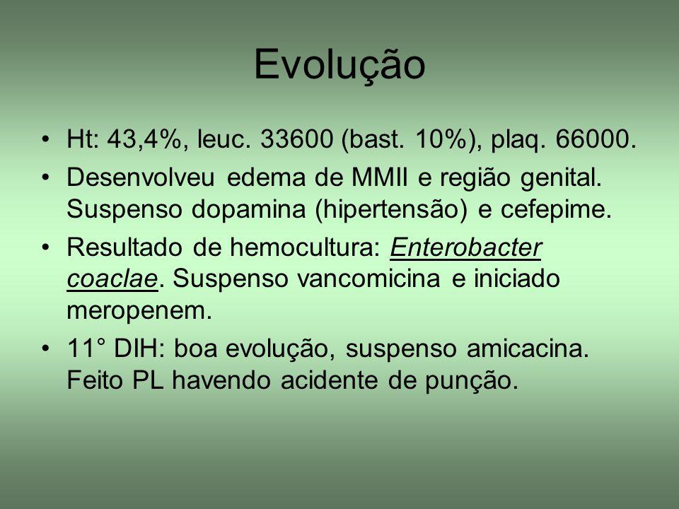 Evolução Ht: 43,4%, leuc. 33600 (bast. 10%), plaq. 66000. Desenvolveu edema de MMII e região genital. Suspenso dopamina (hipertensão) e cefepime. Resu