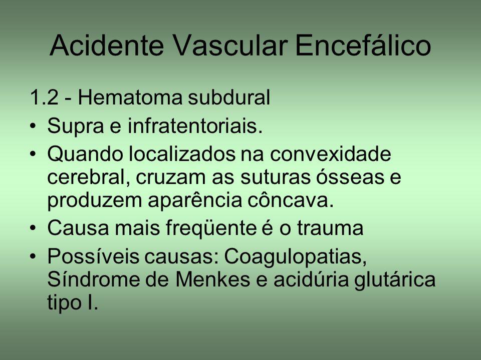Acidente Vascular Encefálico 1.2 - Hematoma subdural Supra e infratentoriais. Quando localizados na convexidade cerebral, cruzam as suturas ósseas e p