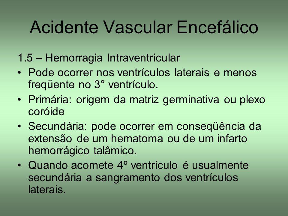 Acidente Vascular Encefálico 1.5 – Hemorragia Intraventricular Pode ocorrer nos ventrículos laterais e menos freqüente no 3° ventrículo. Primária: ori