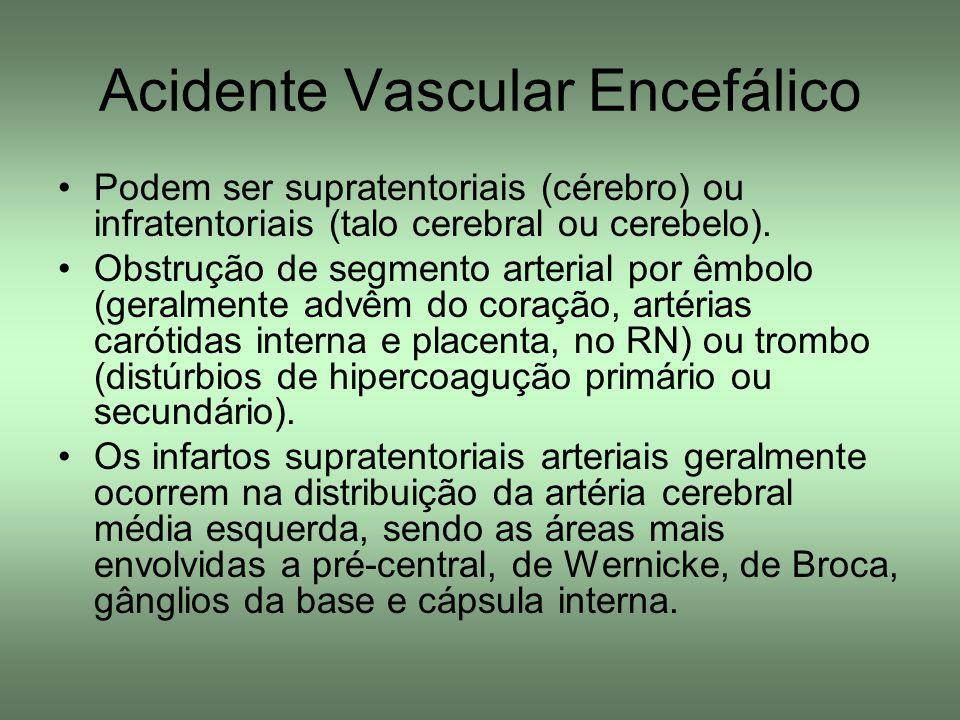 Acidente Vascular Encefálico Podem ser supratentoriais (cérebro) ou infratentoriais (talo cerebral ou cerebelo). Obstrução de segmento arterial por êm