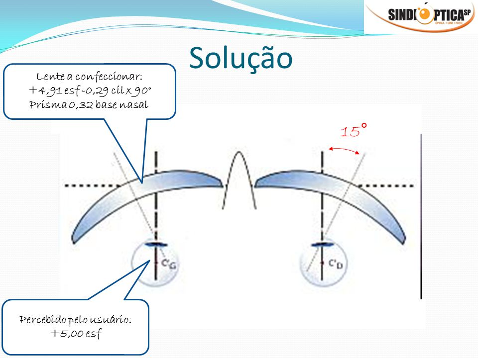 Solução Lente a confeccionar: +4,91 esf -0,29 cil x 90° Prisma 0,32 base nasal Percebido pelo usuário: +5,00 esf 15°