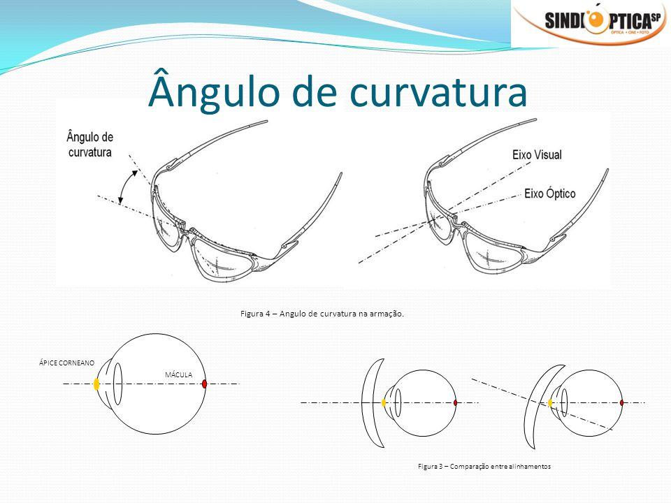 Figura 4 – Angulo de curvatura na armação. Ângulo de curvatura ÁPICE CORNEANO MÁCULA Figura 3 – Comparação entre alinhamentos