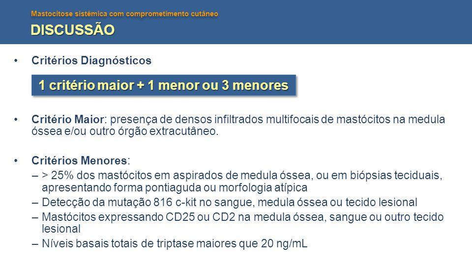 Mastocitose sistêmica com comprometimento cutâneo DISCUSSÃO Critérios Diagnósticos Critério Maior: presença de densos infiltrados multifocais de mastó
