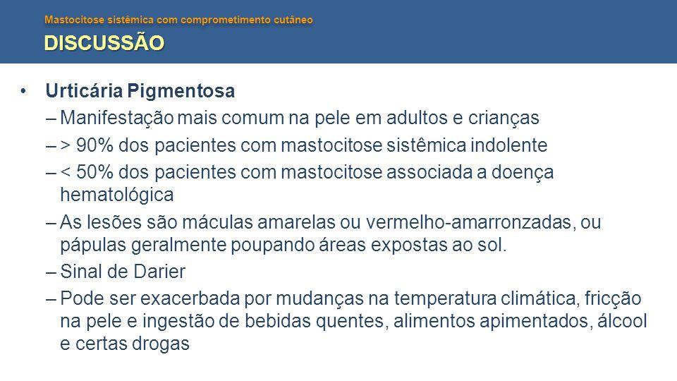 Mastocitose sistêmica com comprometimento cutâneo DISCUSSÃO Urticária Pigmentosa –Manifestação mais comum na pele em adultos e crianças –> 90% dos pac