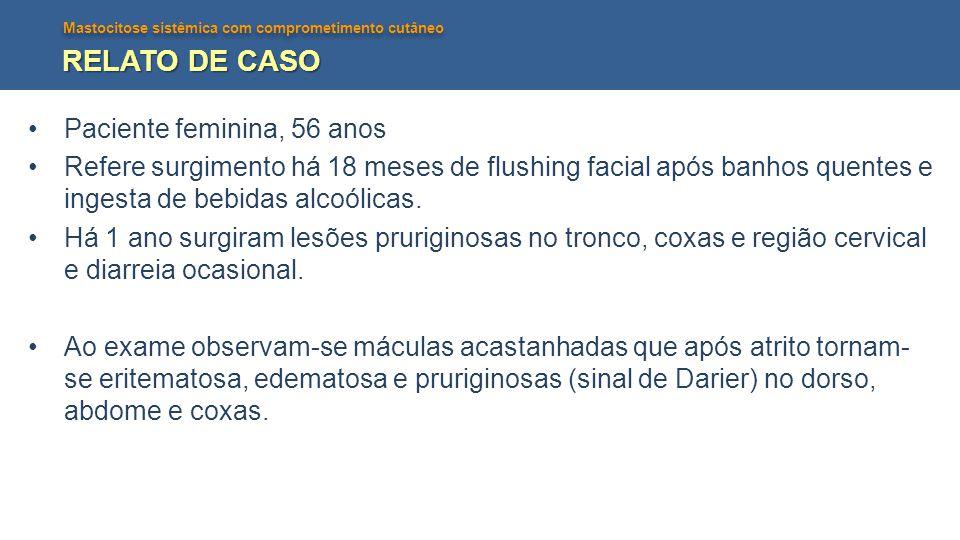 Mastocitose sistêmica com comprometimento cutâneo RELATO DE CASO Paciente feminina, 56 anos Refere surgimento há 18 meses de flushing facial após banh