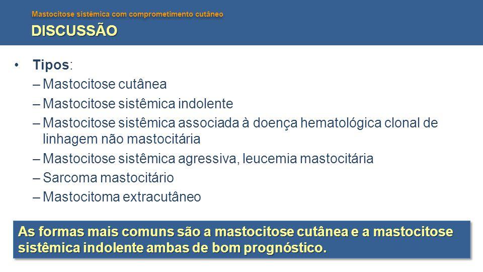Mastocitose sistêmica com comprometimento cutâneo DISCUSSÃO Critérios Diagnósticos Critério Maior: presença de densos infiltrados multifocais de mastócitos na medula óssea e/ou outro órgão extracutâneo.