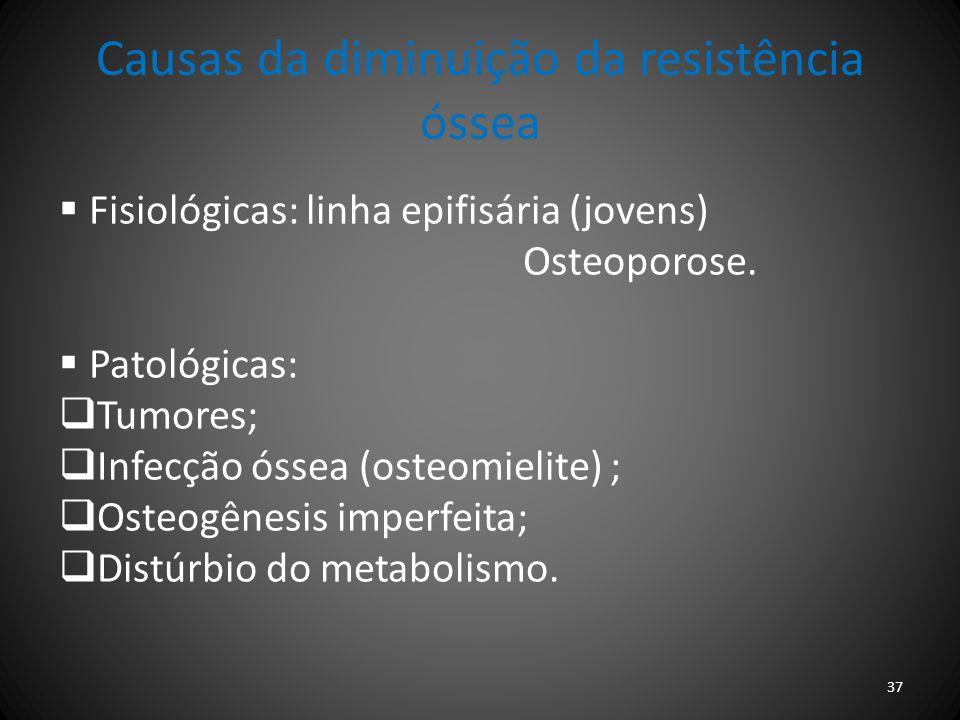 Causas da diminuição da resistência óssea Fisiológicas: linha epifisária (jovens) Osteoporose. Patológicas: Tumores; Infecção óssea (osteomielite) ; O