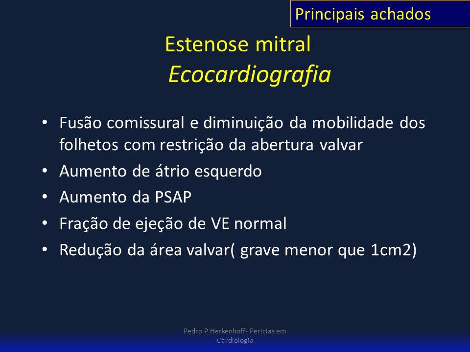 Estenose mitral Ecocardiografia Fusão comissural e diminuição da mobilidade dos folhetos com restrição da abertura valvar Aumento de átrio esquerdo Au