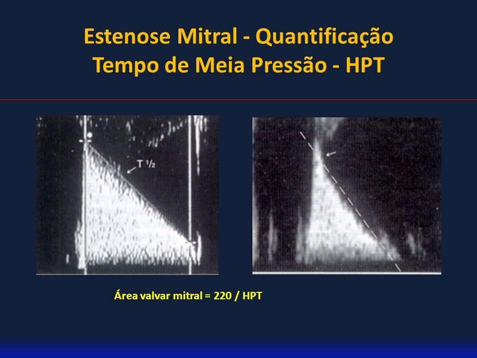 Estenose Mitral - Quantificação Tempo de Meia Pressão - HPT Área valvar mitral = 220 / HPT
