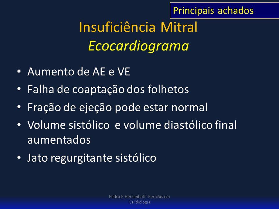 Insuficiência Mitral Ecocardiograma Aumento de AE e VE Falha de coaptação dos folhetos Fração de ejeção pode estar normal Volume sistólico e volume di