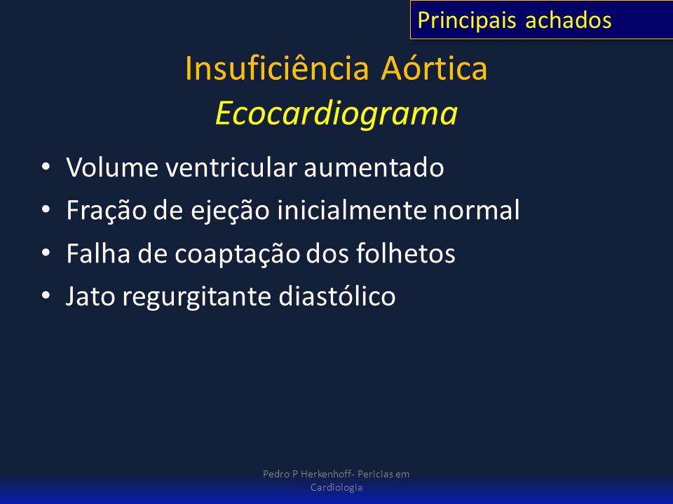 Insuficiência Aórtica Ecocardiograma Volume ventricular aumentado Fração de ejeção inicialmente normal Falha de coaptação dos folhetos Jato regurgitan