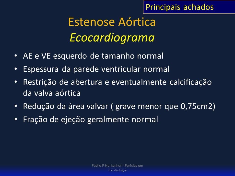 Estenose Aórtica Ecocardiograma AE e VE esquerdo de tamanho normal Espessura da parede ventricular normal Restrição de abertura e eventualmente calcif