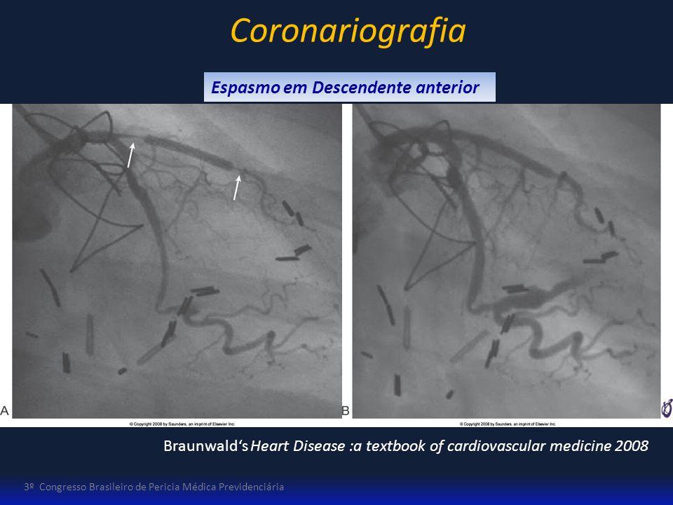 3º Congresso Brasileiro de Pericia Médica Previdenciária Espasmo em Descendente anterior Coronariografia Braunwalds Heart Disease :a textbook of cardi